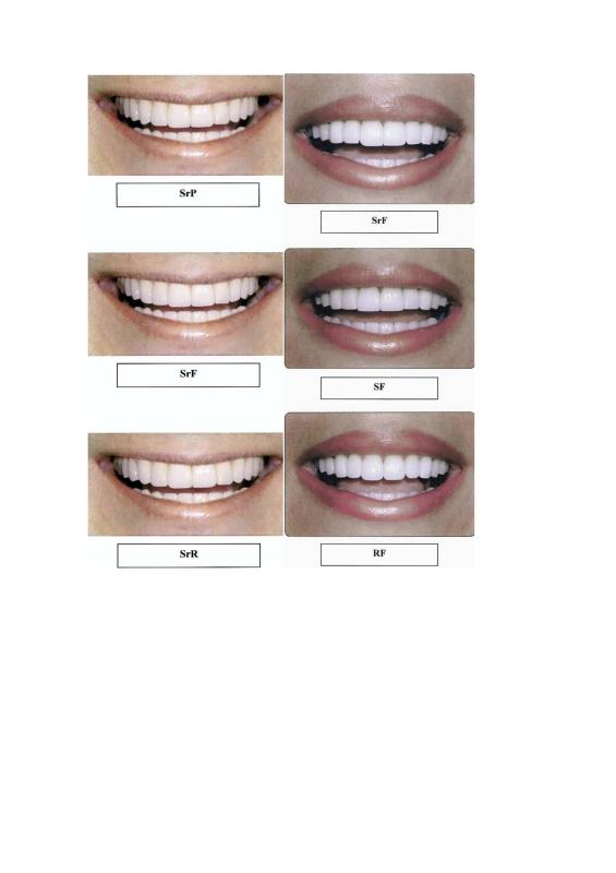Formatos diferentes de dentes feminino e masculino