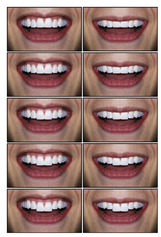Sorriso feminino após manipulação digital