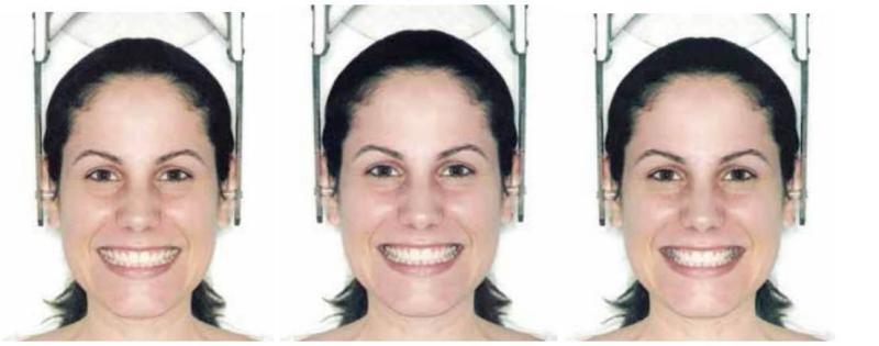 Sorriso de face de mulher caucasiana mostrando estreito, médio e largo corredores bucais