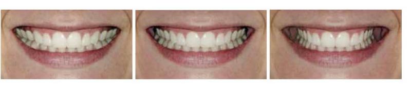 Sorriso aproximado em close-up de mulher caucasiana mostrando estreito, médio e largo corredores bucais