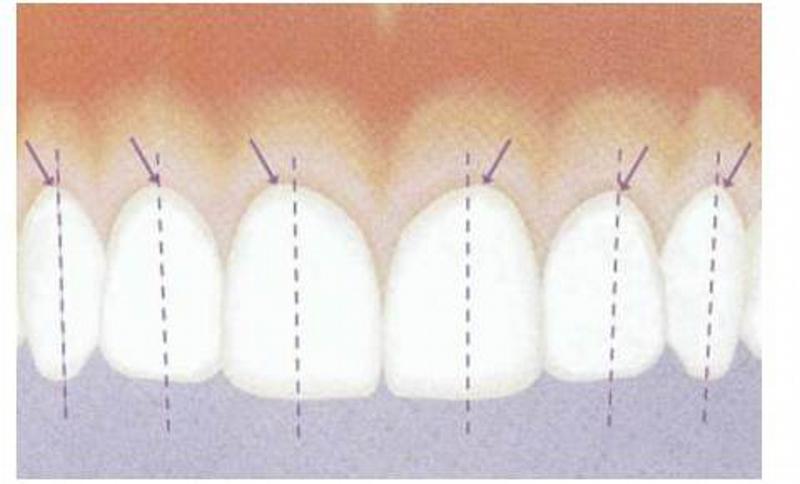Curvatura da margem do formato gengival dos dentes. O zenite gengival (ponto mais apical do tecido gengival) encontra-se distal ao longo eixo axial dos incisivos centrais e caninos superiores podendo coincidir com o eixo longitudinal axial dos laterais.