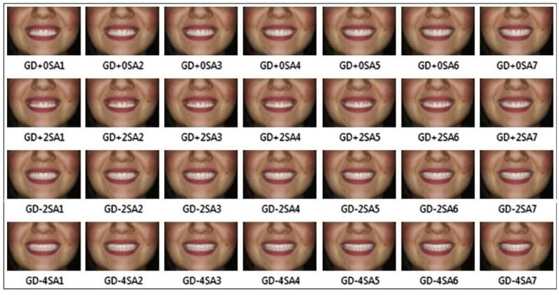 Todas as imagens na ordem em que foram criadas pelo software de processamento de imagem.