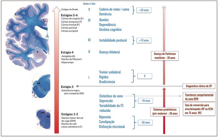 Continuum das manifestações da DP e seus estágios clínicos (Hoehn & Yahr) e patológicos (Braak), segundo teoria clássica que explica a progressão clínica.