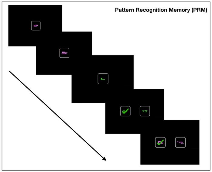 Pattern Recognition Memory (PRM) ou Memória de Reconhecimento de Padrões