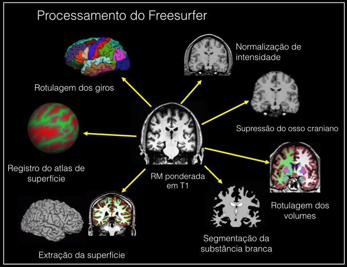 Etapas de processamento da imagem por Ressonância Magnética no software FreeSurfer