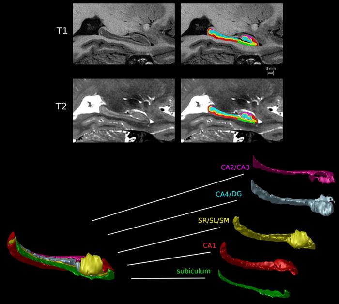 Realização da segmentação dos subcampos hipocampais conforme o protocolo de Winterburn et al., que o divide em 5 partes.