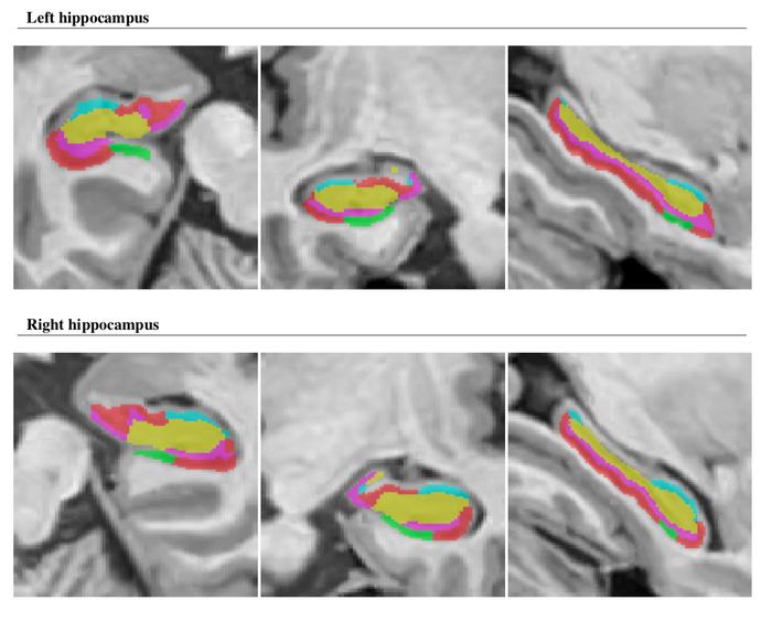 Exemplo de segmentação hipocampal pelo protocolo de Winterburn, conforme o output do software volBrain, da Universidade Politécnica de Valencia (https://volbrain.upv.es/)