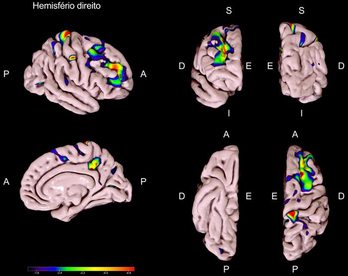 Mapa de contrastes da espessura cortical entre o grupo DP-CCL e o grupo DP-CN (DP-CCL < DP-CN), para o hemisfério direito