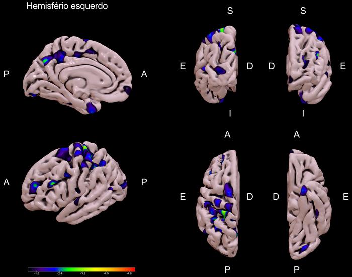 Mapa de contrastes da espessura cortical entre o grupo DP-CCL e o grupo DP-CN (DP-CCL < DP-CN), para o hemisfério esquerdo