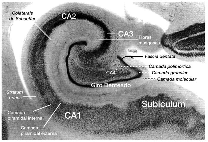 Citoarquitetura da formação hipocampal, em corte coronal de peça anatomo-patológica, com delimitação das estruturas do hipocampo, giro denteado e subiculum.
