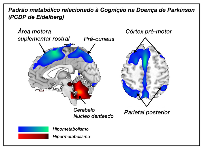 Padrão de covariância espacial metabólica relacionado à cognição na doença de Parkinson (PCDP), descrito pelo grupo de David Eidelberg.