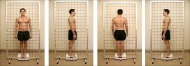 Avaliação postural usando o simetrógrafo